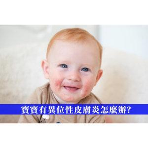 寶寶有異位性皮膚炎怎麼辦?研究發現洋甘菊精油是過敏救星!